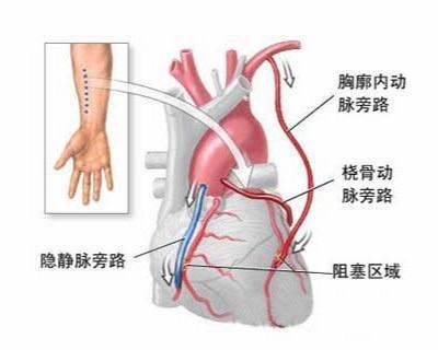 心脏搭桥手术费用是多少?哪些人适合此手术?