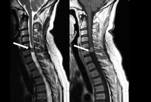 脊膜瘤如何预防?3个健康小贴士