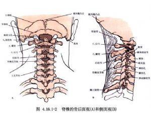 骨髓瘤易与多疾病混淆小心辨别其症状