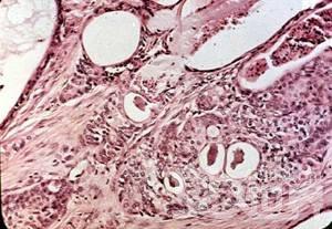 粘液表皮样癌传统手段治疗为主