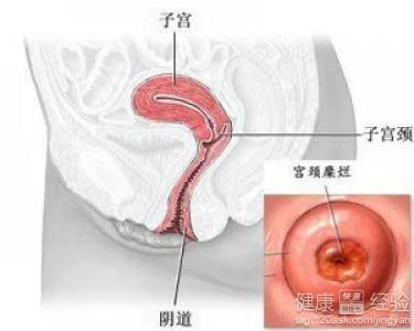 1在临床上,治疗宫颈糜烂的药可以选择消糜栓,或是在医生的指导下使用
