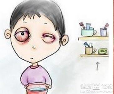 当患了结膜炎