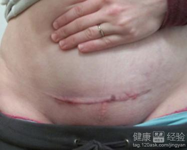 如何預防剖腹產手術后疤痕增生圖片