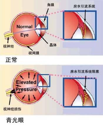青光眼疾病患者的术后护理是怎样的