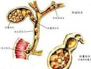 胆结石有哪些治疗方法