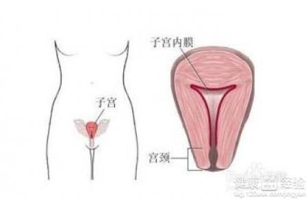 子宫内膜异位怎么检查