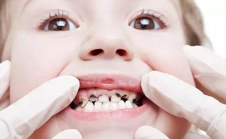 乳牙有龋齿也许要补吗?