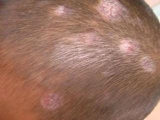 头部牛皮癣有哪些治疗偏方?