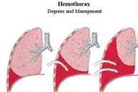 血胸的早期症状及护理保健有哪些?