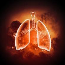 肺栓塞的病理常识有哪些?
