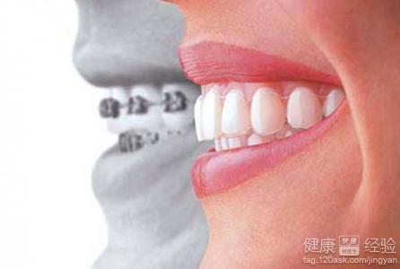 孩子多大做牙齿矫正最好呢