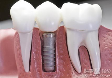 老公做了牙ct会影响怀孕吗