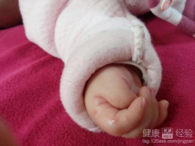 新生儿拇指内扣能治好吗