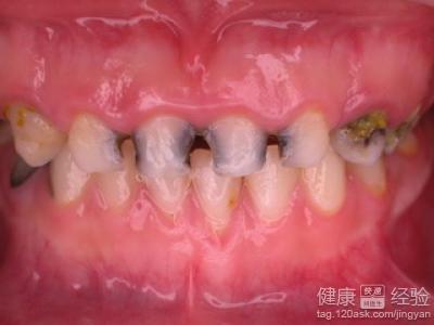 乳牙龋齿神经杀死有影响吗