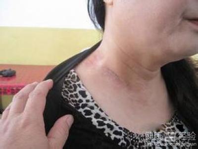 淋巴结核会病变恶性吗