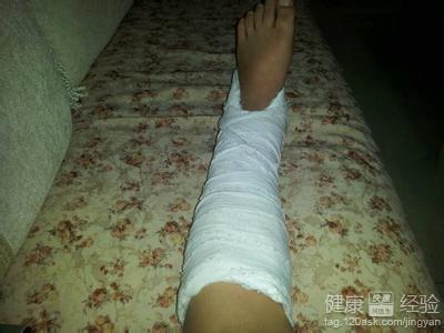 脚韧带断裂有什么症状
