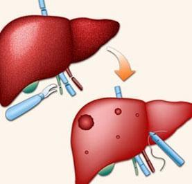 肝纤维化肝损害怎么医疗