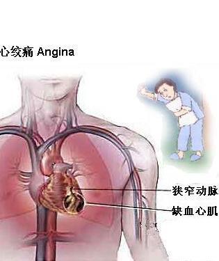 心绞痛的日常保健要点重点!
