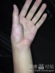 手腕骨折后吃什么有助于恢复