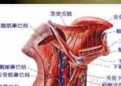 颈淋巴结结核会引发什么疾病