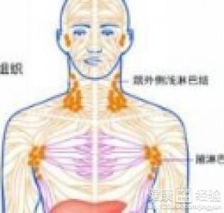 纵隔淋巴结增生怎么诊断