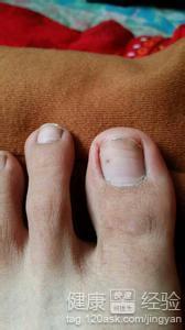 脚的大拇指指甲盖出现黑点