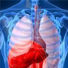 中医治疗肝癌的偏方