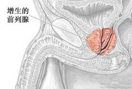腺+��\y���l9�.����(c9��_为了预防前列腺增生需要做到些什么