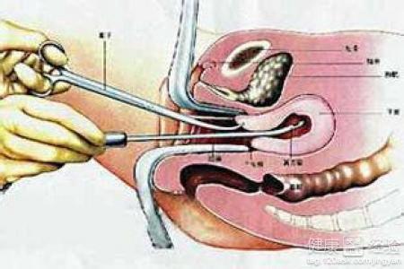 宫腔镜刮宫后多久才能做试管婴儿