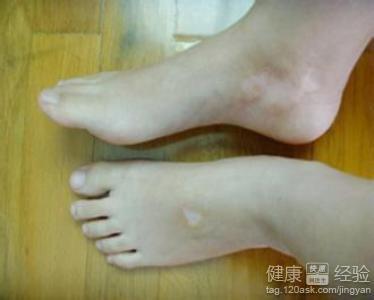 白癜风皮肤病的症状有哪些