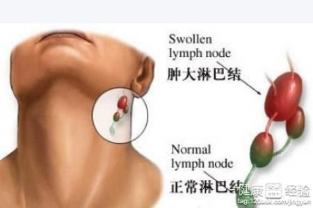 颈部淋巴结核怎么根治