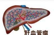 肝上出现血管瘤应该怎么治愈?