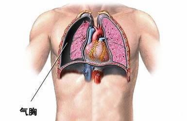 X线诊断肺癌详细情况介绍