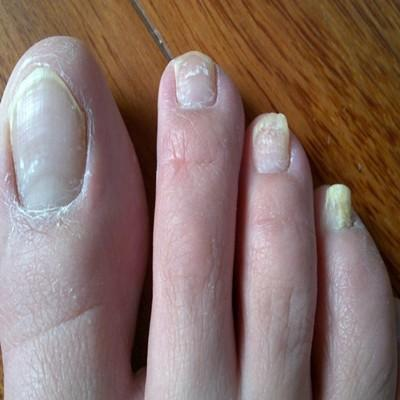 脚趾甲变厚变黄怎么回事