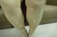 腿上白癜风早期有什么症状 及时发现助你治疗疾病