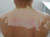 背部白癜风治疗费用分析 素影响费用有3个原因