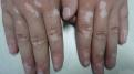 白癜风复发症状有哪些  有五个征兆出现要警惕