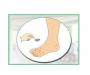 手足癣早期症状有哪些 皮肤四大症状要及时杜绝