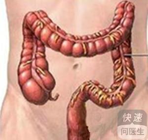 女性肠癌早期什么症状 六个表现要慎重