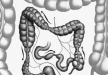 【图解】直肠息肉与痔疮有什么区别 告诉你它们不同点