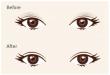 做双眼皮手术会疼吗