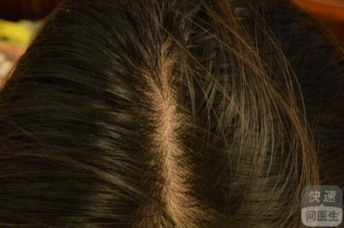 头部牛皮癣治疗方法_头部牛皮癣有专用的洗剂吗