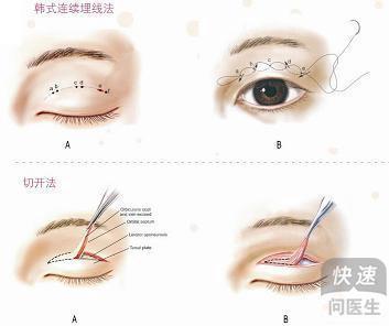 细数做双眼皮的几种方法