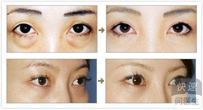 无创伤去眼袋的原理_人体的不同组织细胞都有各自独有的固定超声波振动频率,眼袋脂肪也有固定特有的超声振动频率.当超声波仪器发出的超声波频率