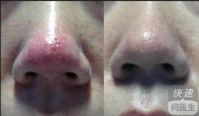 治鼻炎的偏方_鼻炎怎么治
