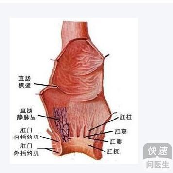 女性肛门痔疮初期囹�a_只有当肛门边缘处赘生皮瓣,逐渐增大,质地柔软,一般无疼痛,不出血,仅
