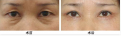 福州激光法去眼袋需要多少钱