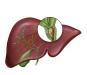 胆管癌晚期呕吐怎么办 四大绝招教你缓解病症