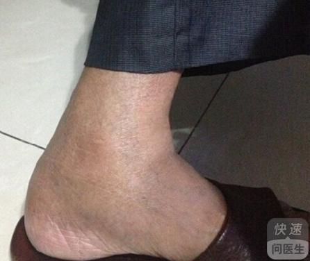 老年人脚肿是怎么回事