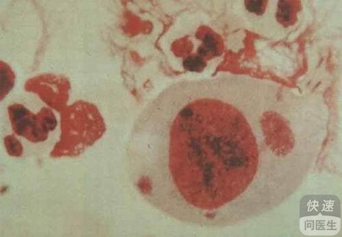 男性尿路感染的早期症状